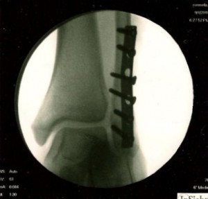broken leg fibular spiral fracture with open reduction internal fixation surgery ORIF