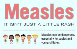 Measles - It Isn't Just a Little Rash